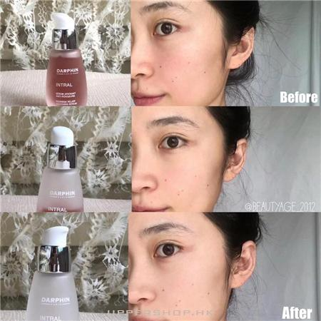 Beauty Age