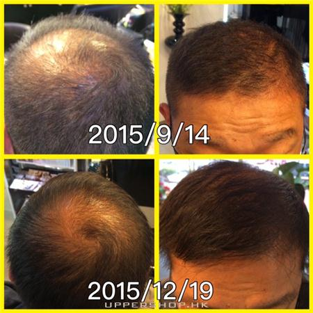 新加坡中草藥頭髮護理中心